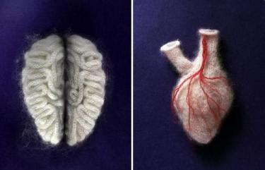 Sarah Illenberger's Woolen Brain and Kidney